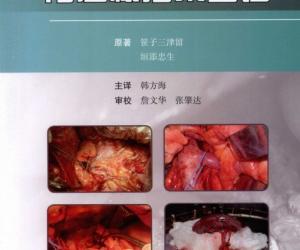 《胃癌根治术图谱》扫描版[PDF]